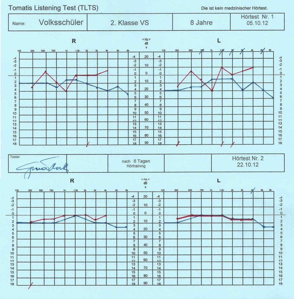 Hörkurve - jeder Laie erkennt die Verbesserung.